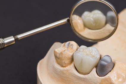 Ceramic Crown For Molar Teeth