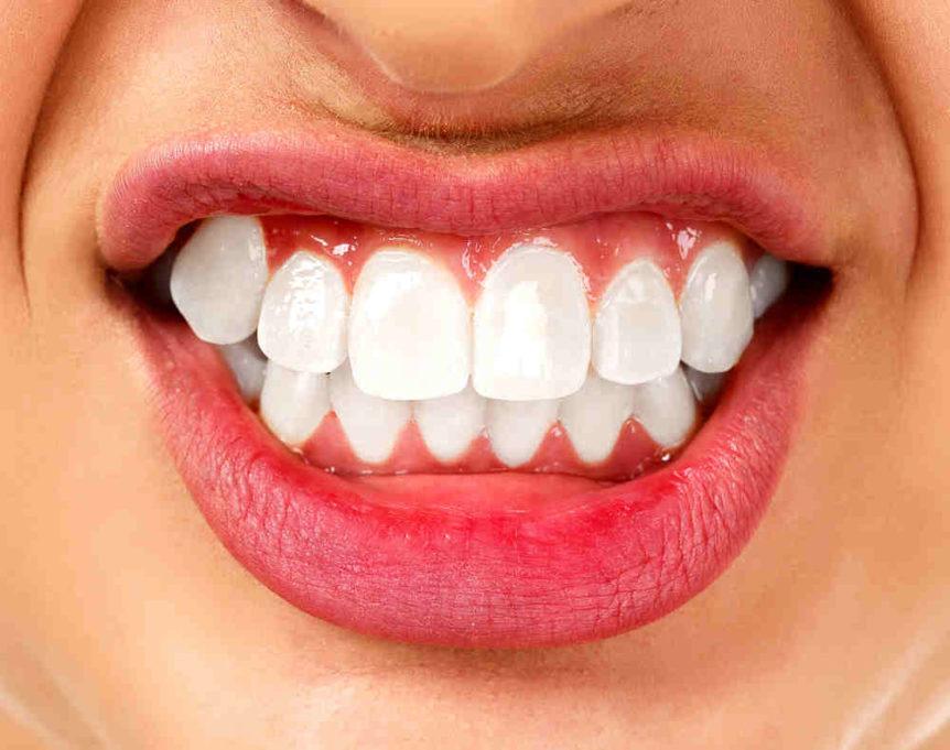 Bruxism - Excessive Teeth Grinding