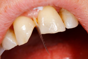 Trauma Dentistry - Comnposite Filling Tooth Treatment
