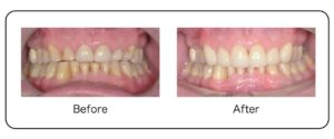 Full Mouth Rehab Change