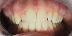 Before Fixed Dental Orthopaedics