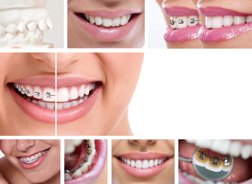 Fixed or Removable Orthodontics: Their Pros and Cons